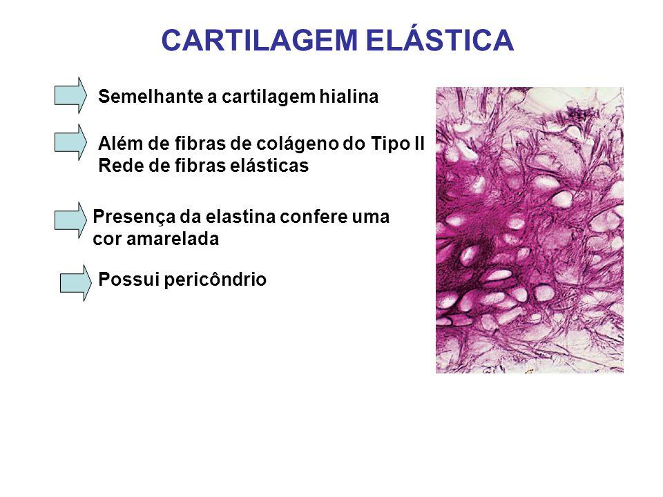CARTILAGEM ELÁSTICA Semelhante a cartilagem hialina Além de fibras de colágeno do Tipo II Rede de fibras elásticas Presença da elastina confere uma cor amarelada Possui pericôndrio