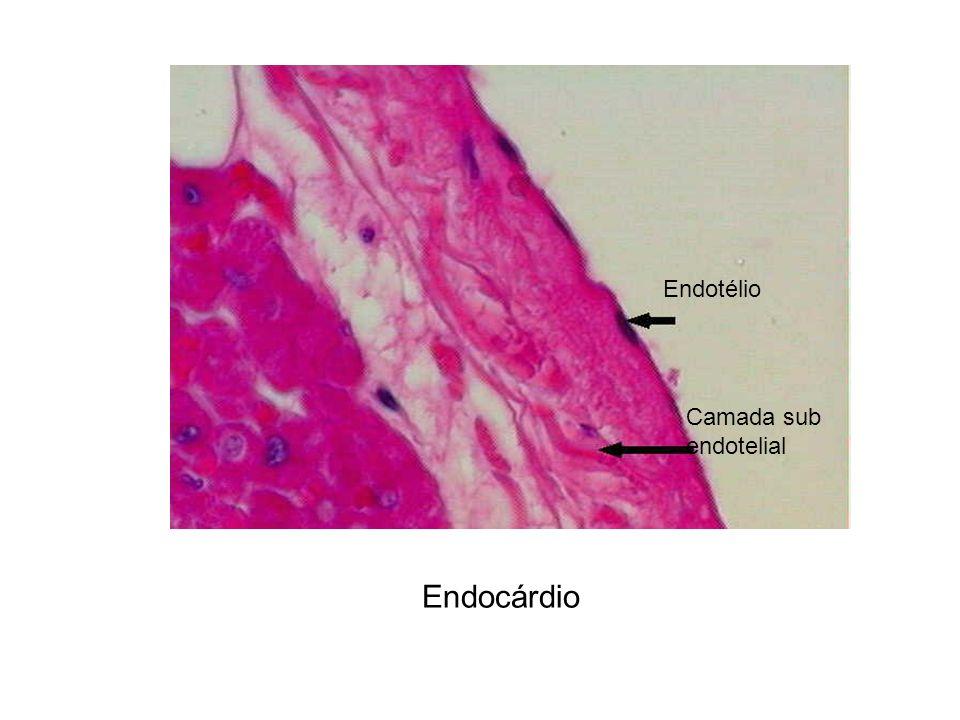 Endocárdio Endotélio Camada sub endotelial