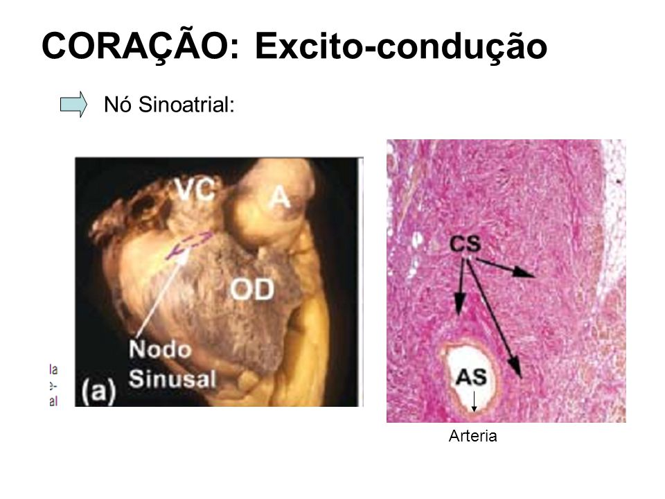 CORAÇÃO: Excito-condução Nó Sinoatrial: Arteria