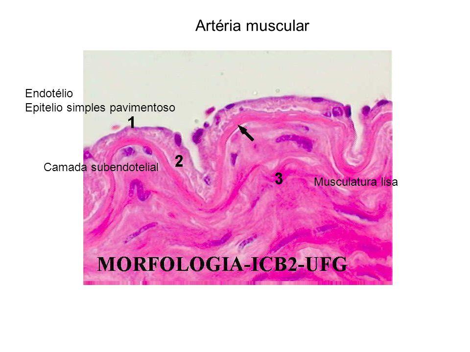 Artéria muscular Endotélio Epitelio simples pavimentoso Camada subendotelial Musculatura lisa