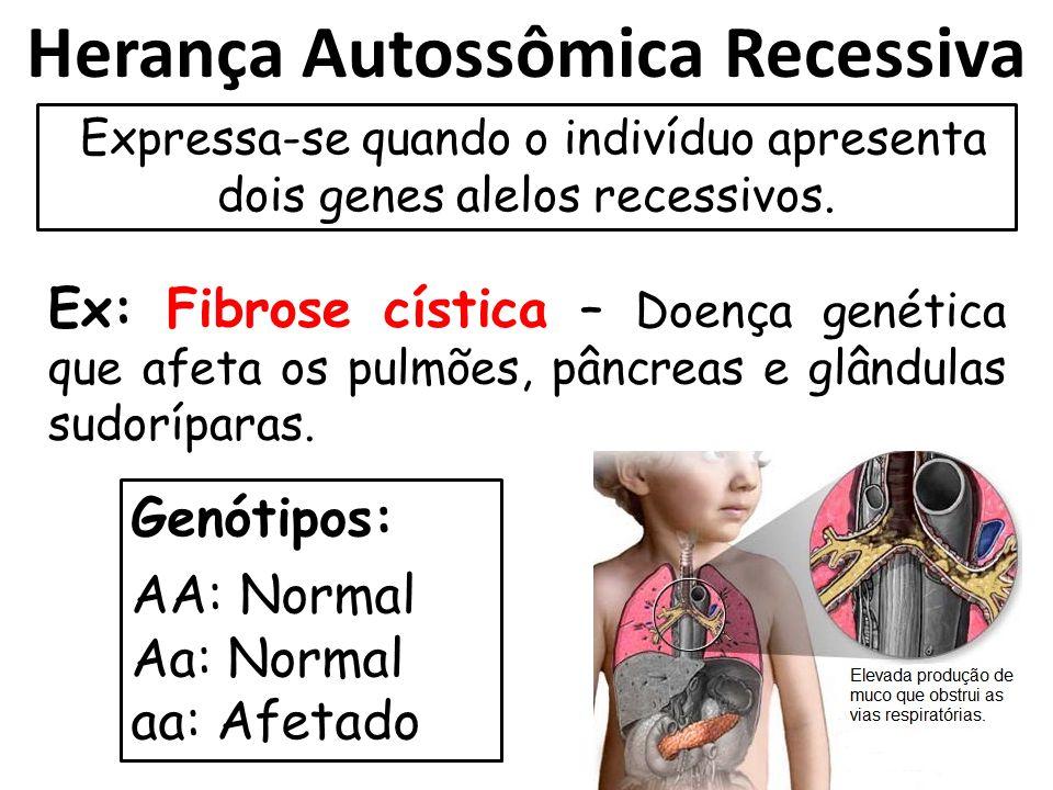 Herança Autossômica Recessiva Expressa-se quando o indivíduo apresenta dois genes alelos recessivos. Ex: Fibrose cística – Doença genética que afeta o