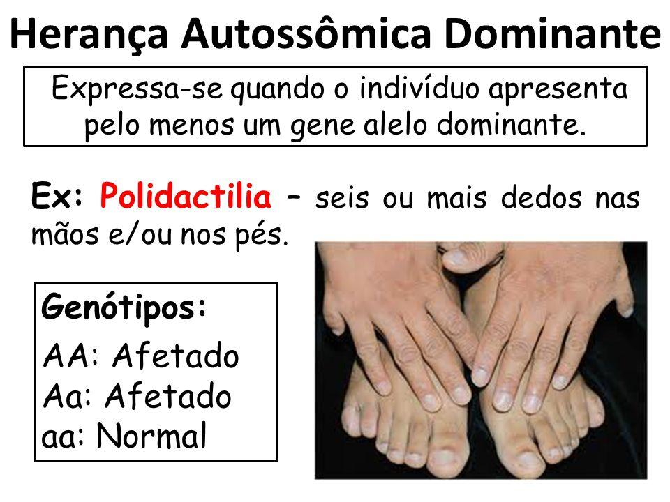 Herança Autossômica Dominante Expressa-se quando o indivíduo apresenta pelo menos um gene alelo dominante. Ex: Polidactilia – seis ou mais dedos nas m