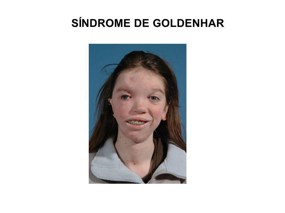 SÍNDROME DE GOLDENHAR
