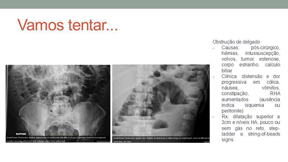 Obstrução de delgado -Causas: pós-cirúrgico, hérnias, intussuscepção, volvos, tumor, estenose, corpo estranho, calculo biliar -Clínica: distensão e do