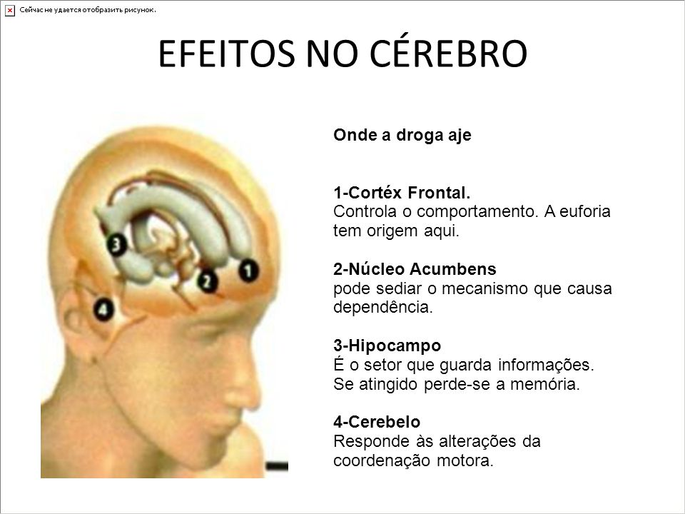 EFEITOS NO CÉREBRO Onde a droga aje 1-Cortéx Frontal. Controla o comportamento. A euforia tem origem aqui. 2-Núcleo Acumbens pode sediar o mecanismo q