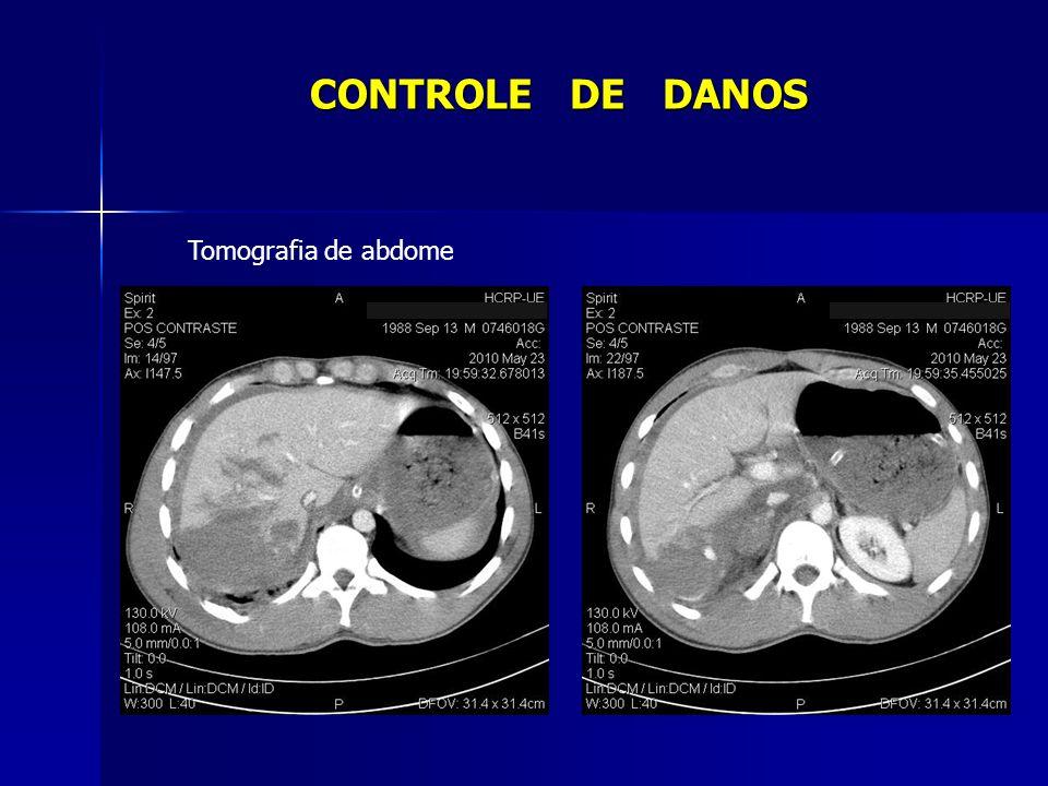 Tomografia de abdome