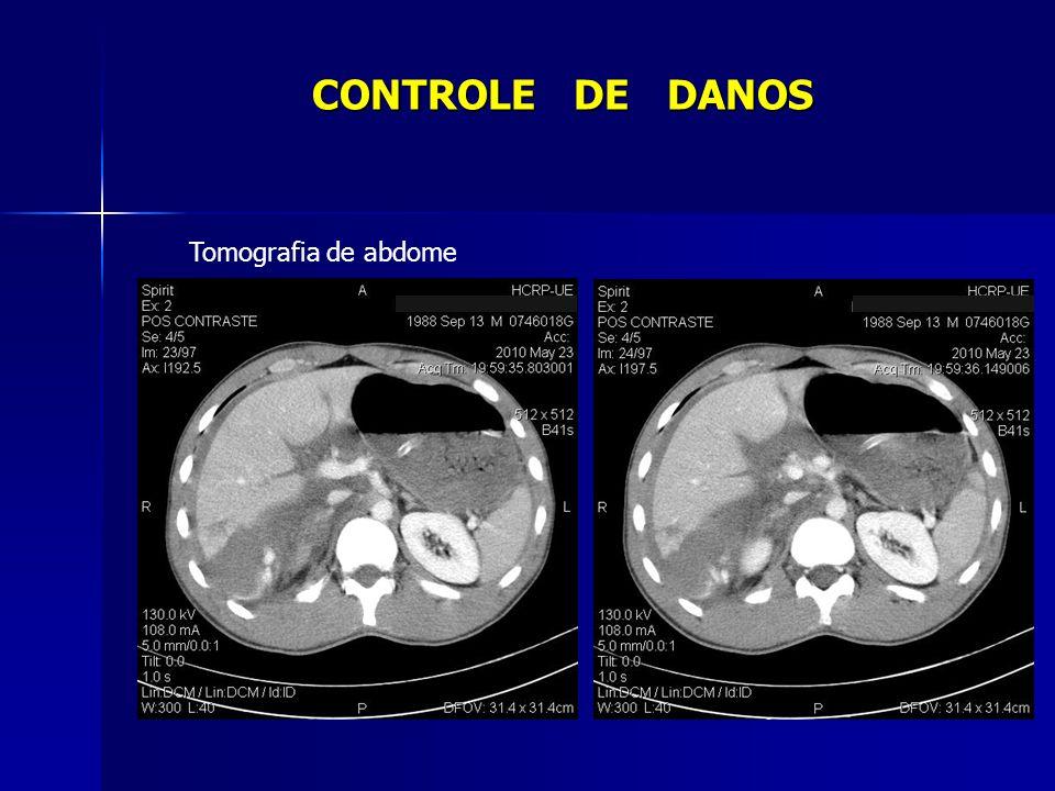 0 a 11h após admissão - 21 U de concentrado de hemácias - 20 U de plasma fresco congelado - 11 U de crioprecipitado - 26 U de plaquetas CONTROLE DE DANOS Evolução Cirurgia