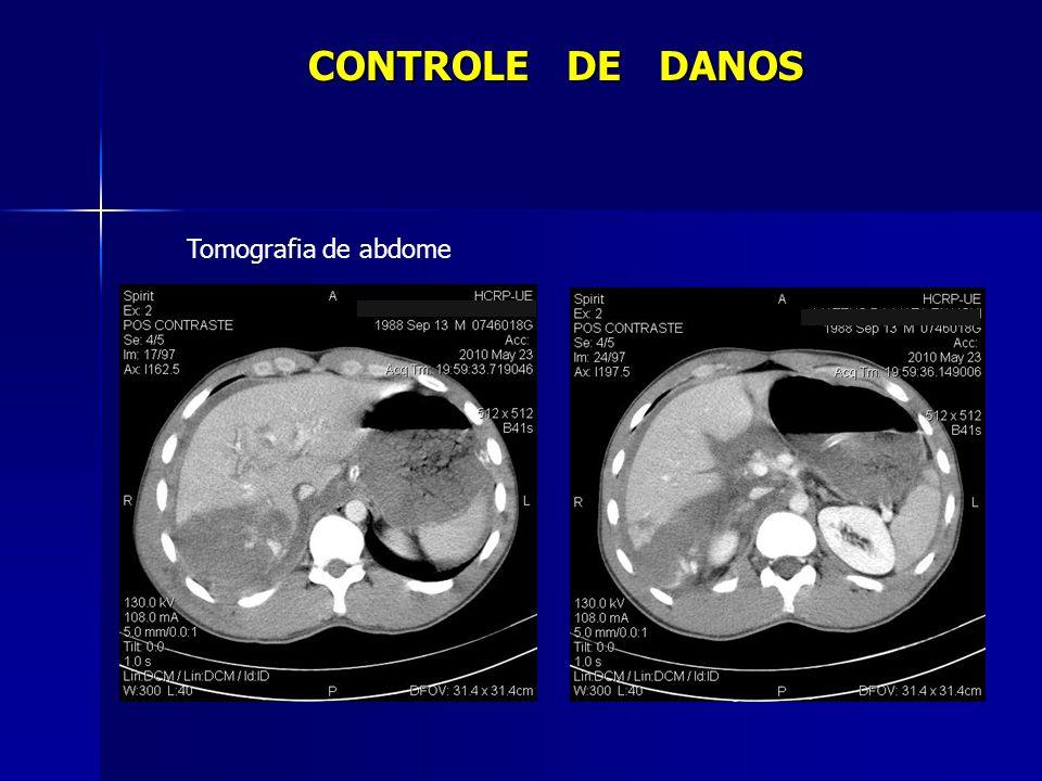 0 a 11h após admissão - 21 U de concentrado de hemácias - 20 U de plasma fresco congelado - 11 U de crioprecipitado - 26 U de plaquetas Evolução Cirurgia CONTROLE DE DANOS