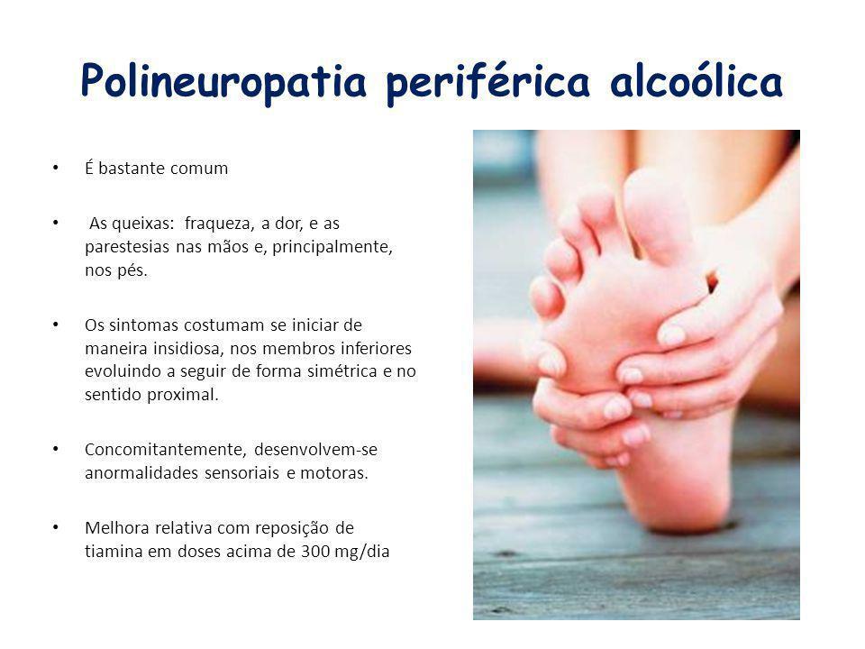 Polineuropatia periférica alcoólica É bastante comum As queixas: fraqueza, a dor, e as parestesias nas mãos e, principalmente, nos pés. Os sintomas co