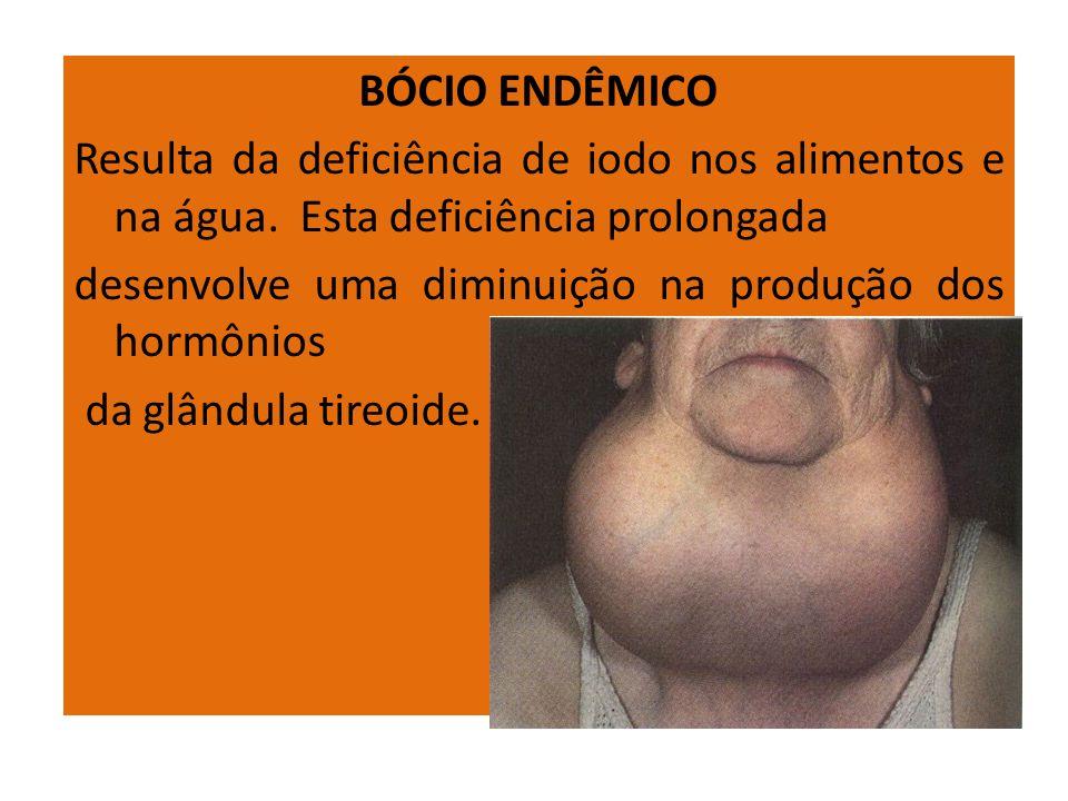 BÓCIO ENDÊMICO Resulta da deficiência de iodo nos alimentos e na água. Esta deficiência prolongada desenvolve uma diminuição na produção dos hormônios