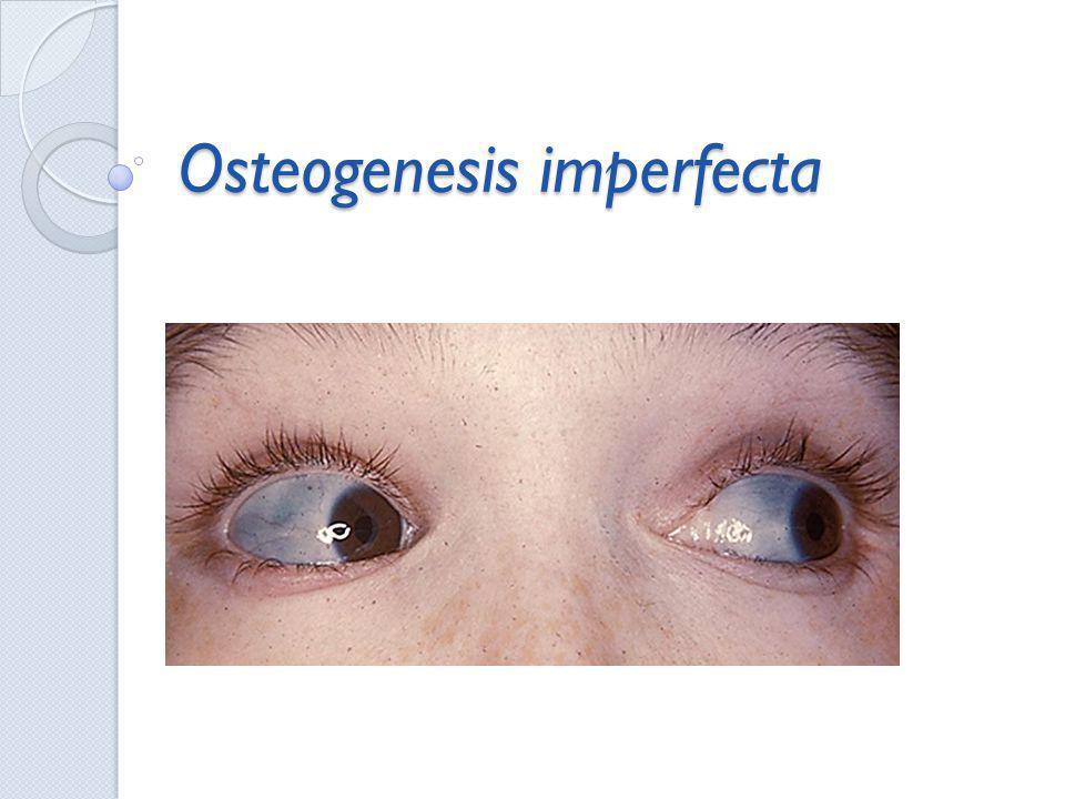 Introdução A osteogenesis imperfecta (OI) foi descoberta e descrita corretamente por Lobstein em 1835.