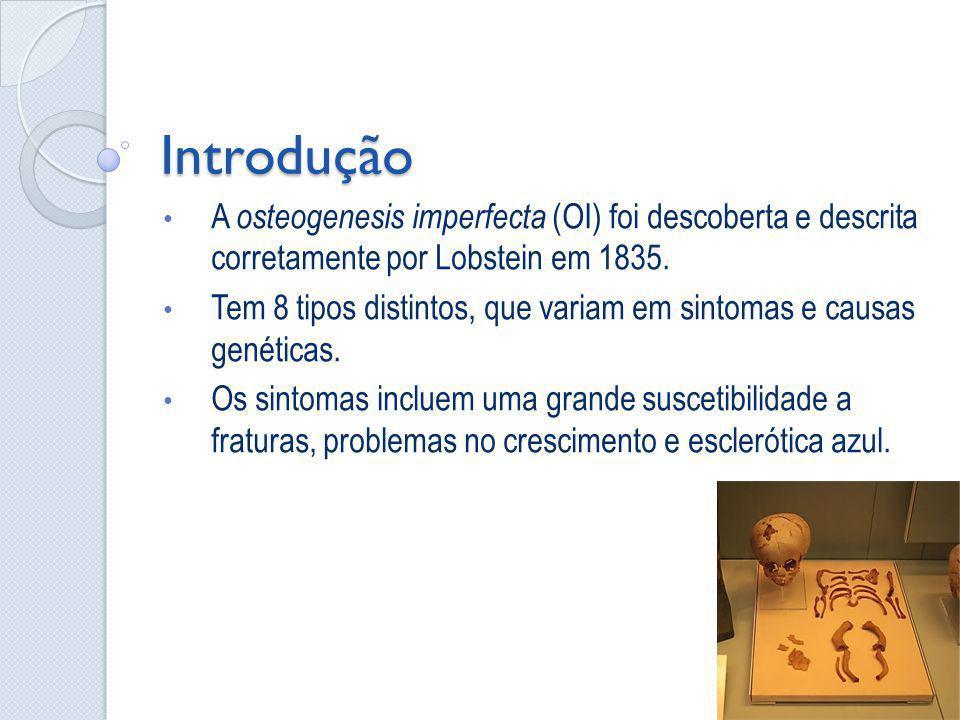 Introdução A osteogenesis imperfecta (OI) foi descoberta e descrita corretamente por Lobstein em 1835. Tem 8 tipos distintos, que variam em sintomas e