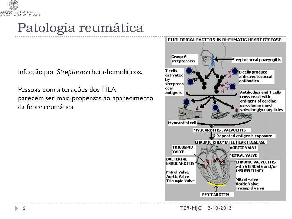Patologia reumática 2-10-2013T09-MJC6 Infecção por Streptococci beta-hemoliticos. Pessoas com alterações dos HLA parecem ser mais propensas ao apareci