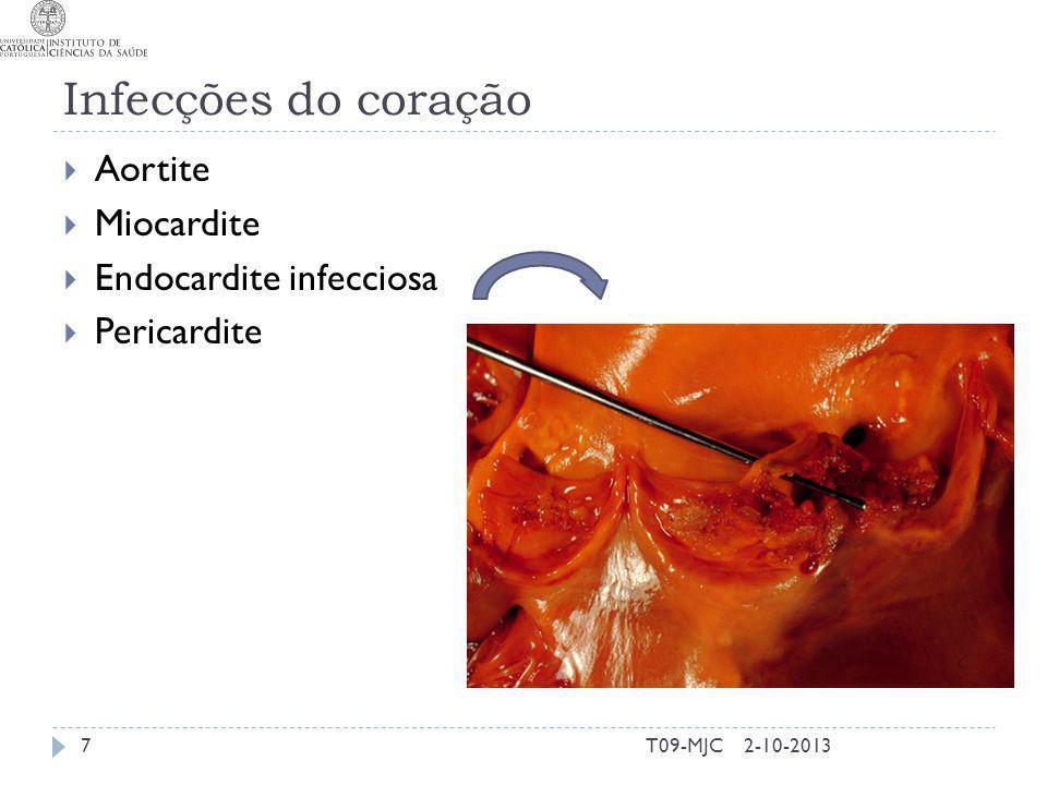 2-10-2013T09-MJC Etiologia Turbulência Plaquetas e Fibrina (trombos) Adesão microbiana Êmbolos Sintomas clínicos 8