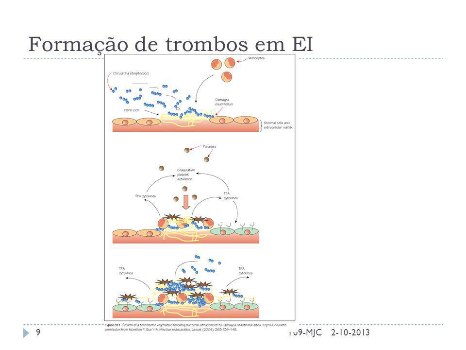 Formação de trombos em EI 2-10-2013T09-MJC9