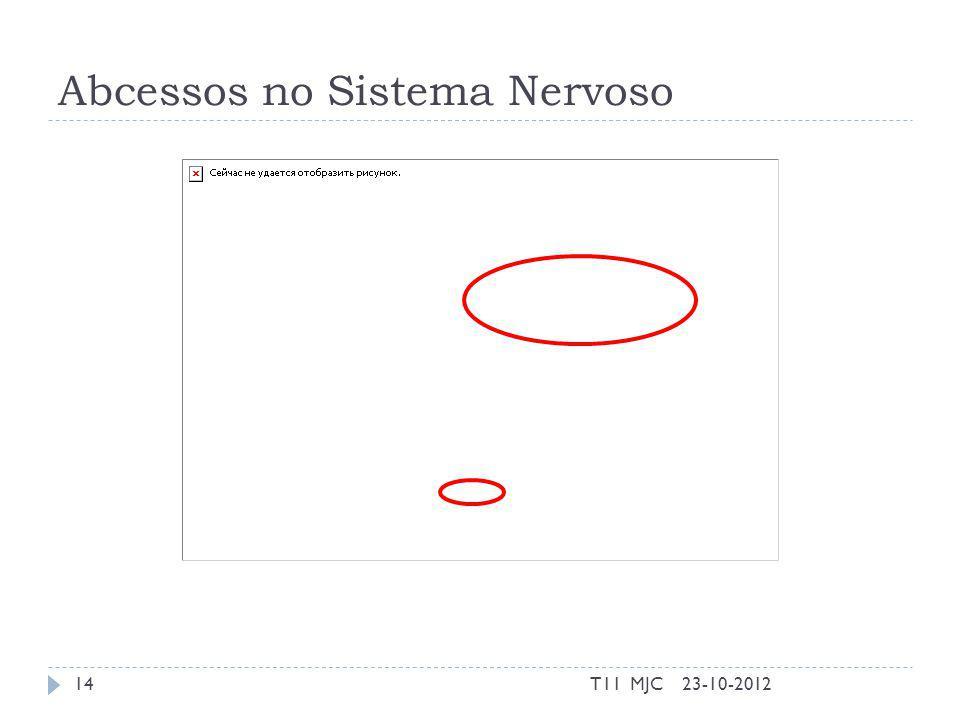 Abcessos no Sistema Nervoso 23-10-201214T11 MJC