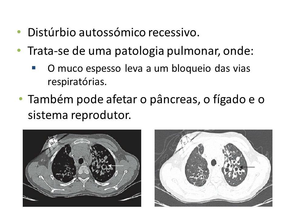 Distúrbio autossómico recessivo. Trata-se de uma patologia pulmonar, onde: O muco espesso leva a um bloqueio das vias respiratórias. Também pode afeta