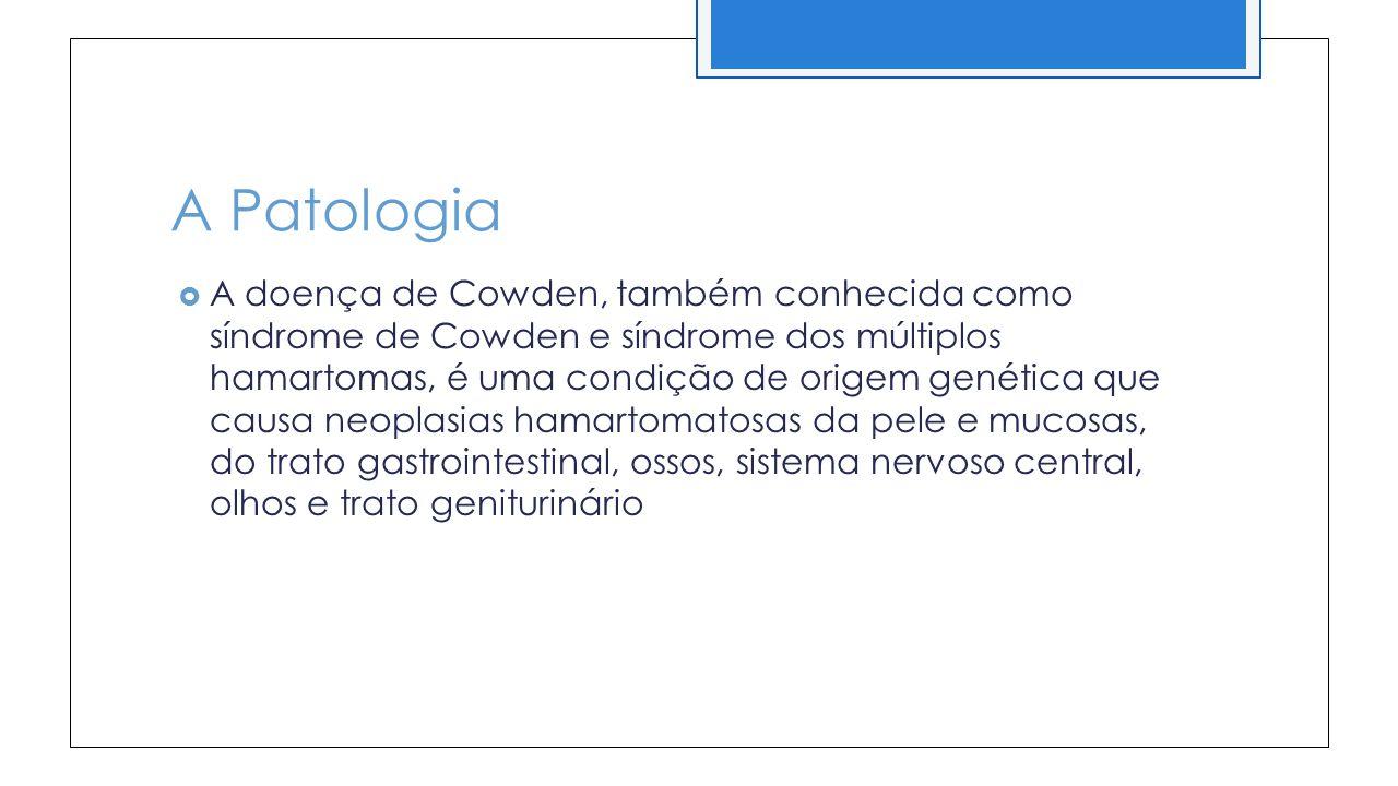A Patologia A doença de Cowden, também conhecida como síndrome de Cowden e síndrome dos múltiplos hamartomas, é uma condição de origem genética que causa neoplasias hamartomatosas da pele e mucosas, do trato gastrointestinal, ossos, sistema nervoso central, olhos e trato geniturinário