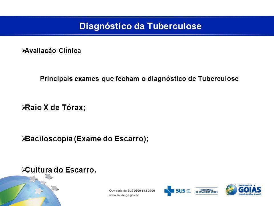 Diagnóstico da Tuberculose Avaliação Clínica Principais exames que fecham o diagnóstico de Tuberculose Raio X de Tórax; Baciloscopia (Exame do Escarro