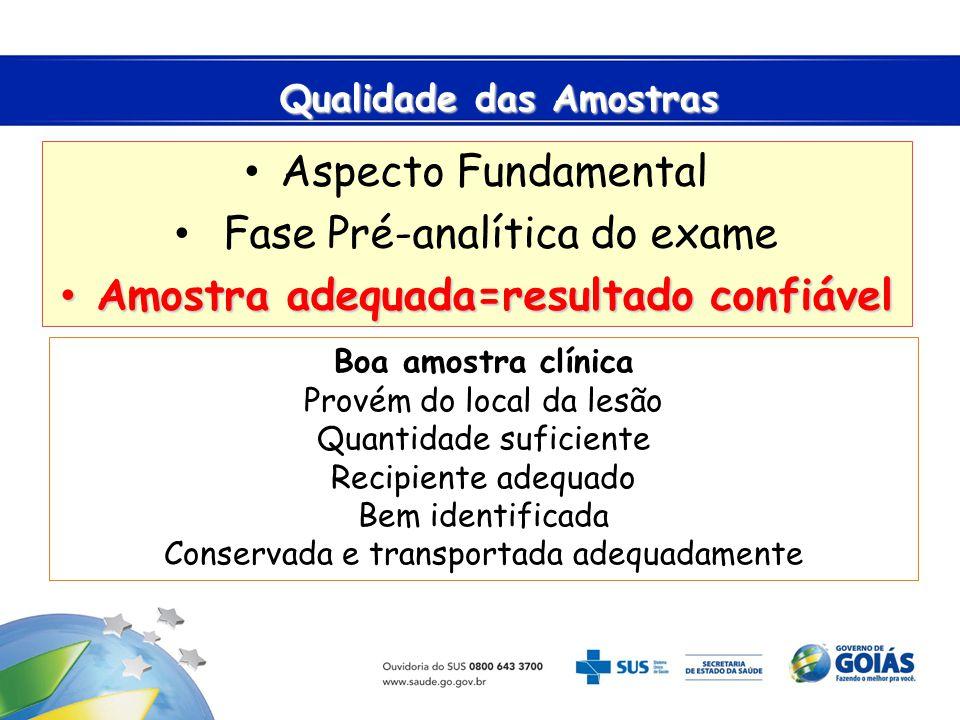 Qualidade das Amostras Qualidade das Amostras Aspecto Fundamental Fase Pré-analítica do exame Amostra adequada=resultado confiável Amostra adequada=re