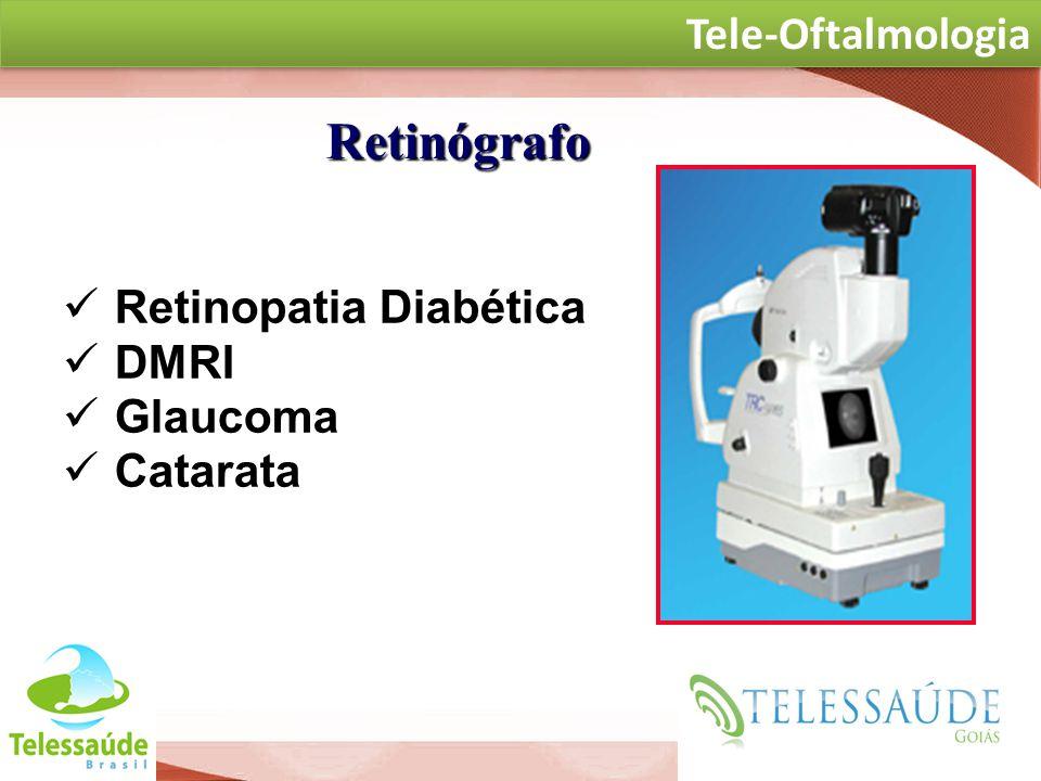 Secretaria de Gestão do Trabalho e da Educação na Saúde Retinopatia Diabética DMRI Glaucoma Catarata at Retinógrafo TELE-OFTALMOLOGIA Tele-Oftalmologi