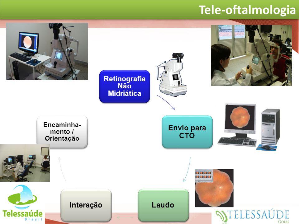 Secretaria de Gestão do Trabalho e da Educação na Saúde Retinografia Não Midriática Envio para CTO LaudoInteração Encaminha- mento / Orientação at TEL