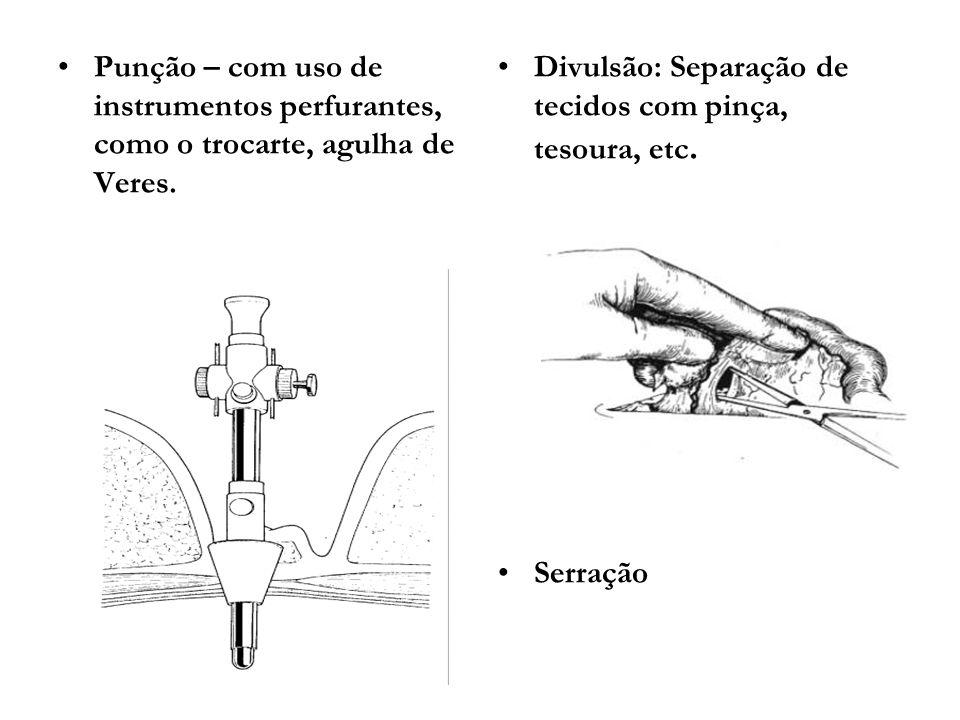 Punção – com uso de instrumentos perfurantes, como o trocarte, agulha de Veres.