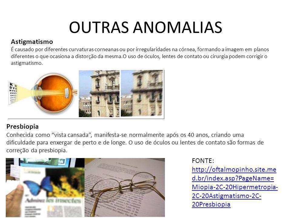 OUTRAS ANOMALIAS Astigmatismo É causado por diferentes curvaturas corneanas ou por irregularidades na córnea, formando a imagem em planos diferentes o