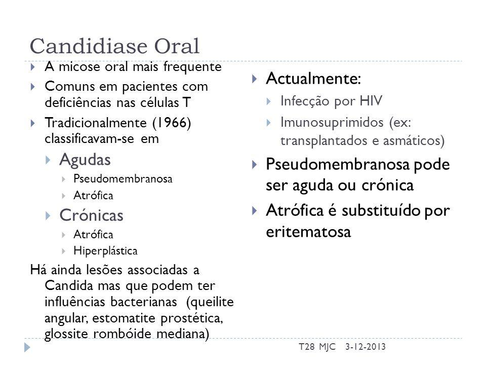 Candidiase Oral A micose oral mais frequente Comuns em pacientes com deficiências nas células T Tradicionalmente (1966) classificavam-se em Agudas Pse