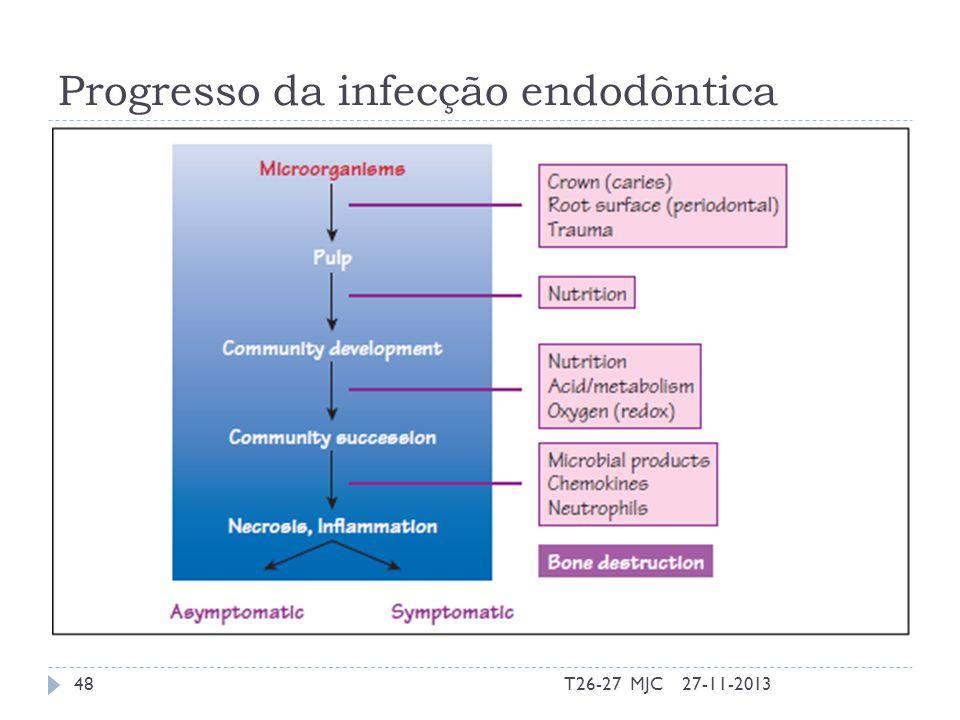 Progresso da infecção endodôntica 27-11-2013T26-27 MJC48