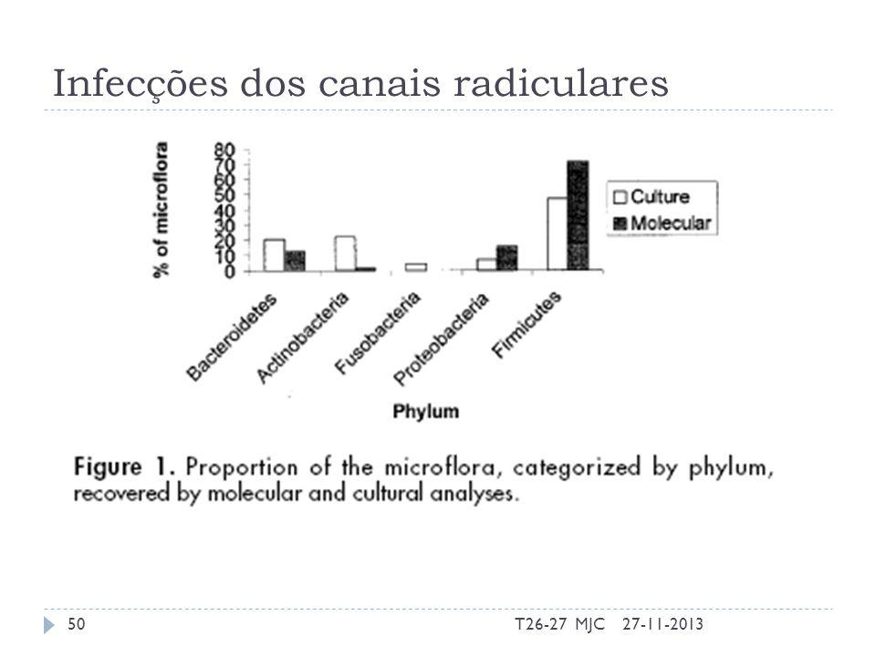 Infecções dos canais radiculares 27-11-201350T26-27 MJC