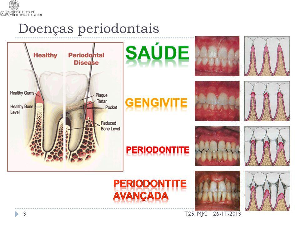 Doenças periodontais 26-11-20133T25 MJC