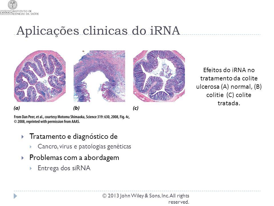 Aplicações clinicas do iRNA Tratamento e diagnóstico de Cancro, virus e patologias genéticas Problemas com a abordagem Entrega dos siRNA Efeitos do iRNA no tratamento da colite ulcerosa (A) normal, (B) colitie (C) colite tratada.