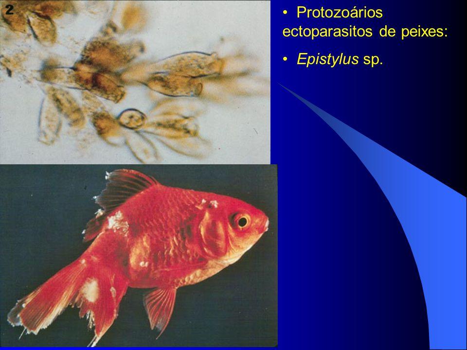 Protozoários ectoparasitos de peixes: Epistylus sp.