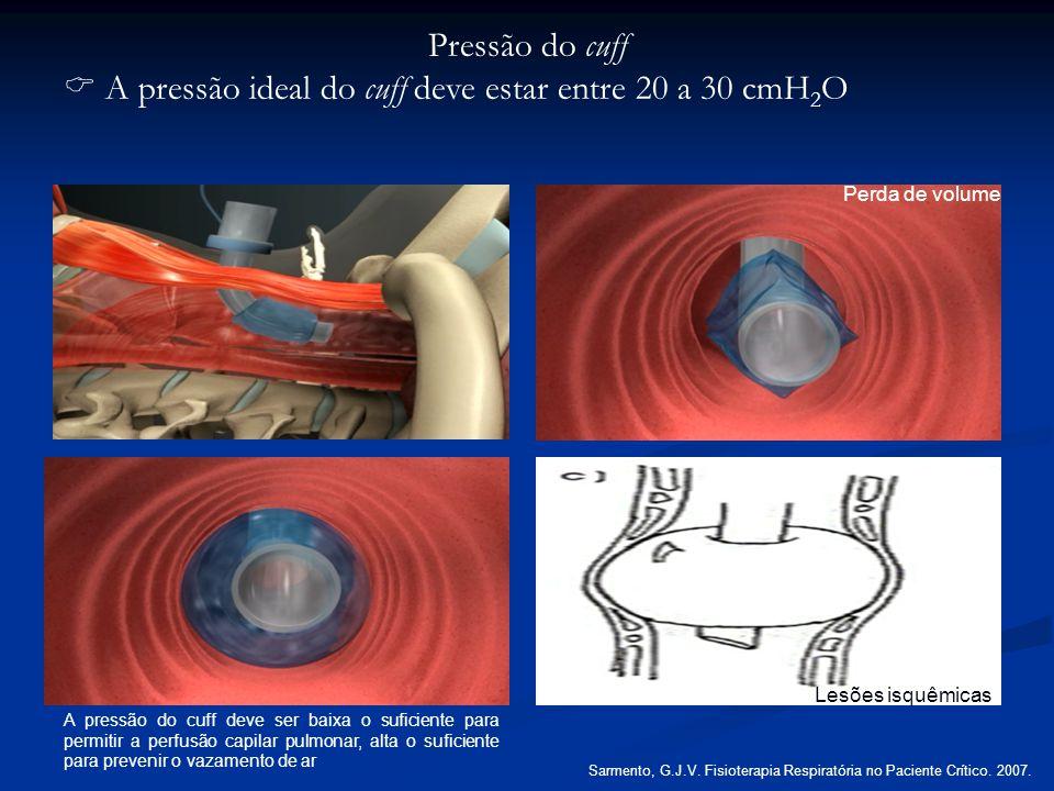 Pressão do cuff A pressão ideal do cuff deve estar entre 20 a 30 cmH 2 O Perda de volume A pressão do cuff deve ser baixa o suficiente para permitir a