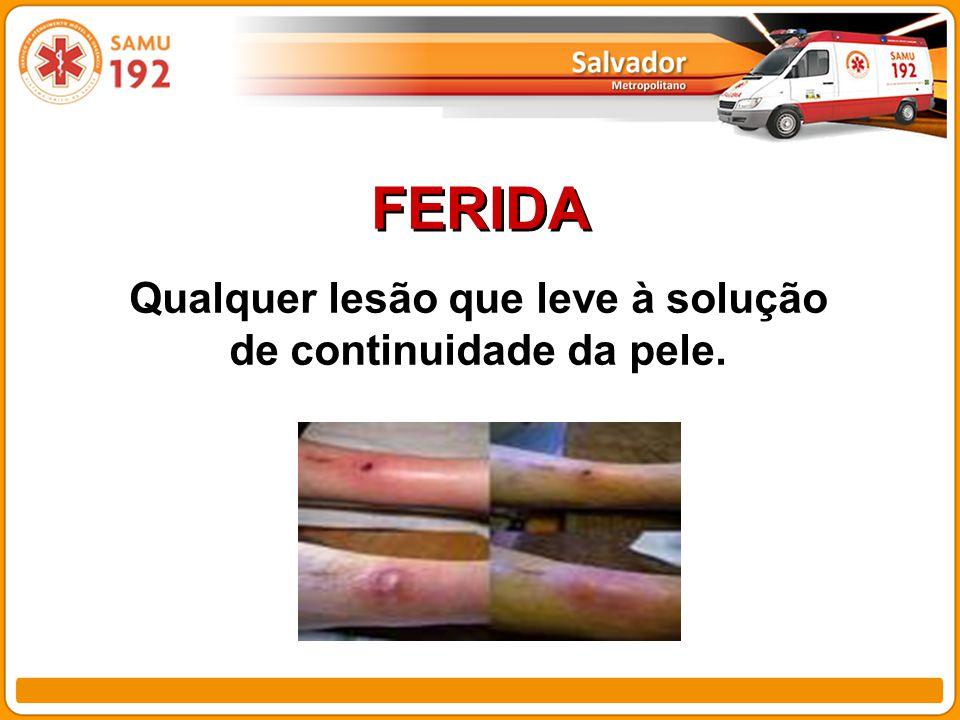FERIDA Qualquer lesão que leve à solução de continuidade da pele.