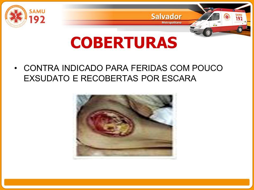 COBERTURAS CONTRA INDICADO PARA FERIDAS COM POUCO EXSUDATO E RECOBERTAS POR ESCARA