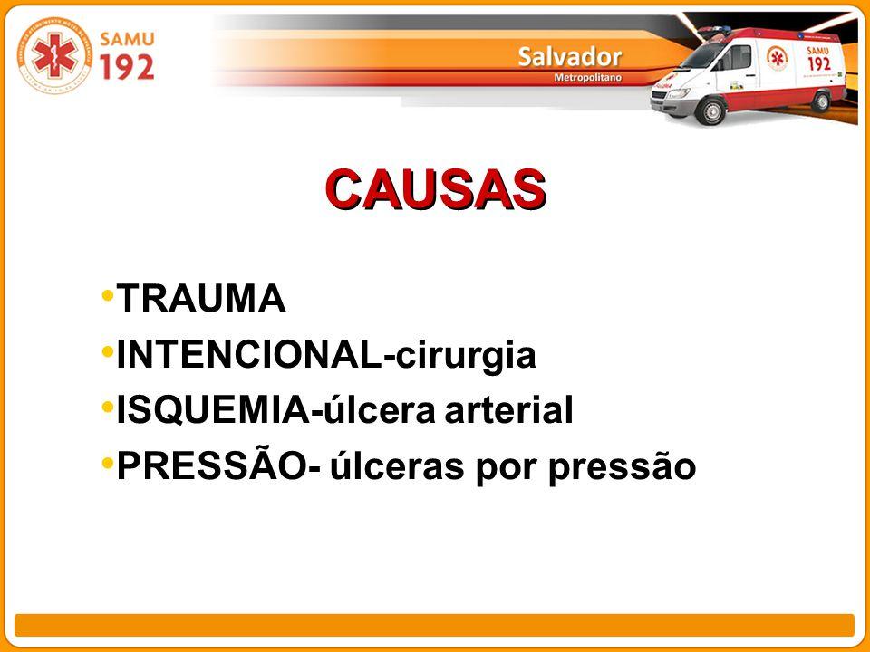 CAUSAS TRAUMA INTENCIONAL-cirurgia ISQUEMIA-úlcera arterial PRESSÃO- úlceras por pressão