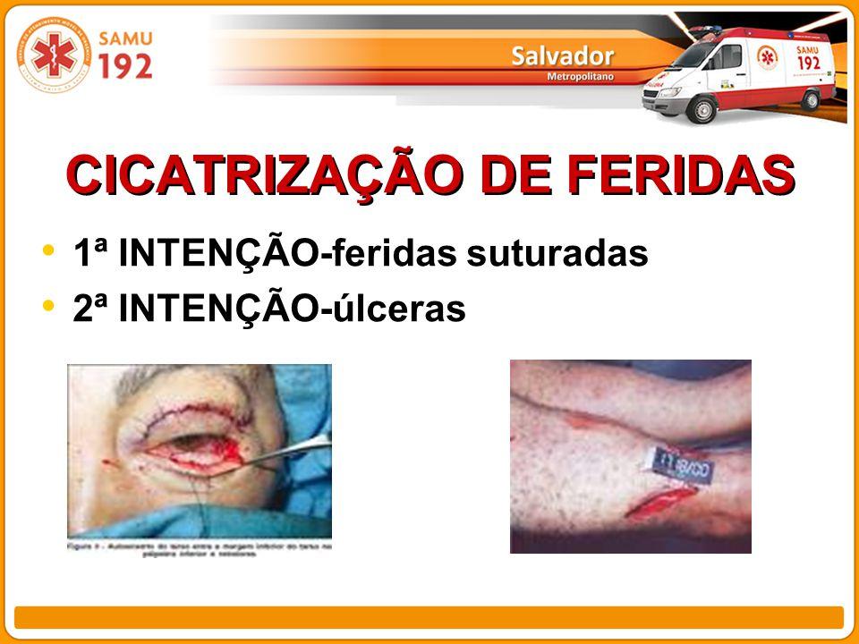 CICATRIZAÇÃO DE FERIDAS 1ª INTENÇÃO-feridas suturadas 2ª INTENÇÃO-úlceras