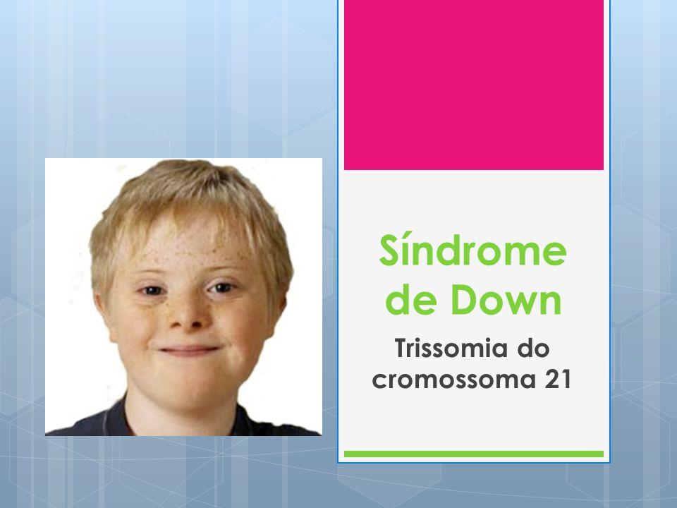 Causas do Síndrome de Down Causa Percentagem aproximada de ocorrência Trissomia 2195% Translocação robertsoniana2-3% Mosaicismo1-2% Duplicação de uma porção do cromossoma 21 <1%