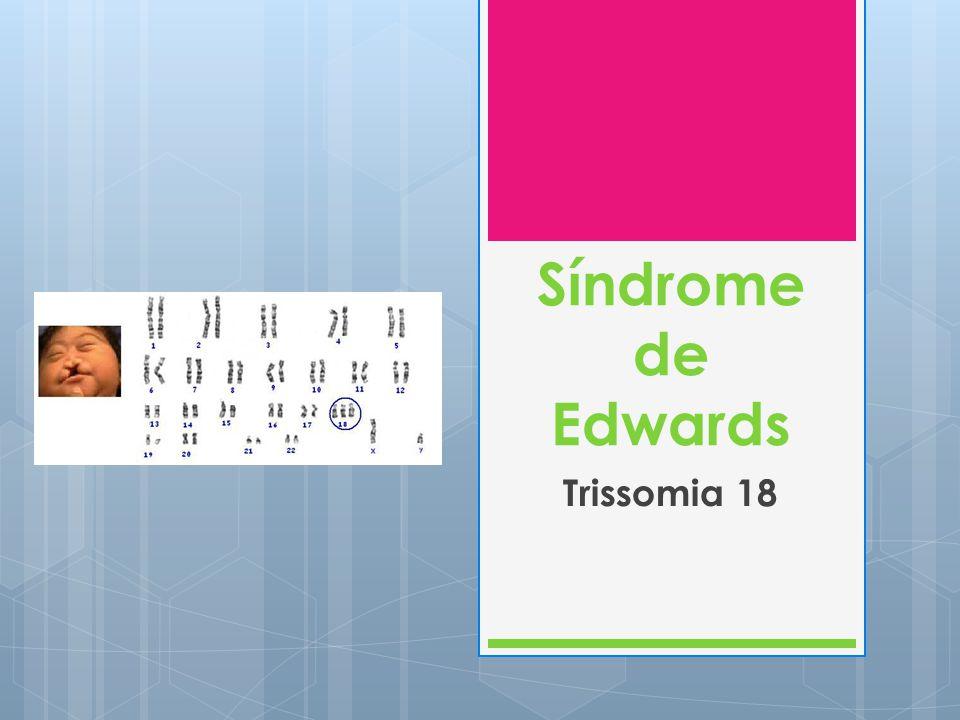 A Síndrome de Edwards ou Trissomia 18 Síndrome autossómica mais comum depois da Trissomia 21.