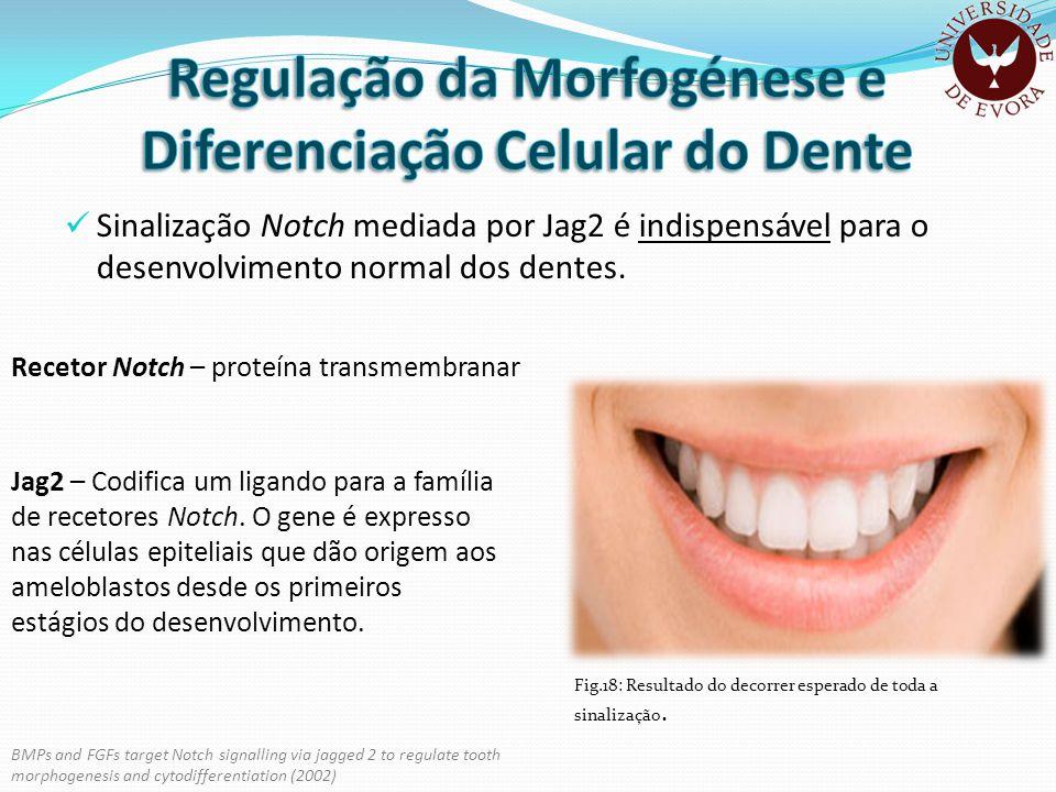 Sinalização Notch mediada por Jag2 é indispensável para o desenvolvimento normal dos dentes. Recetor Notch – proteína transmembranar Jag2 – Codifica u