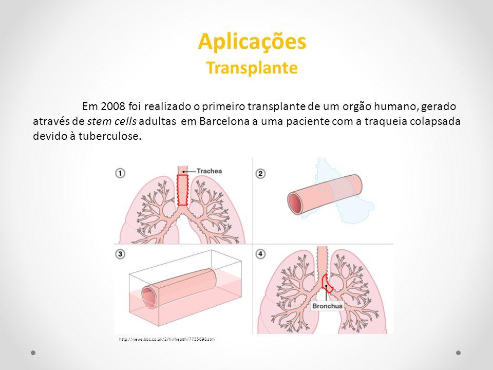 Em 2008 foi realizado o primeiro transplante de um orgão humano, gerado através de stem cells adultas em Barcelona a uma paciente com a traqueia colap