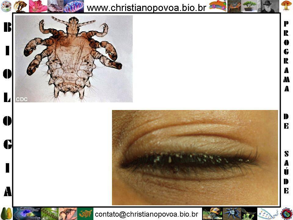 5. Pediculose Pubiana (Piolho) Conceito Infestação da região pubiana causadas por um inseto do grupo dos piolhos e cuja única manifestação é o intenso