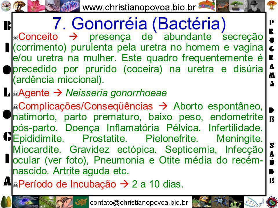 Tricomonas Corrimento devido à Tricomoníase