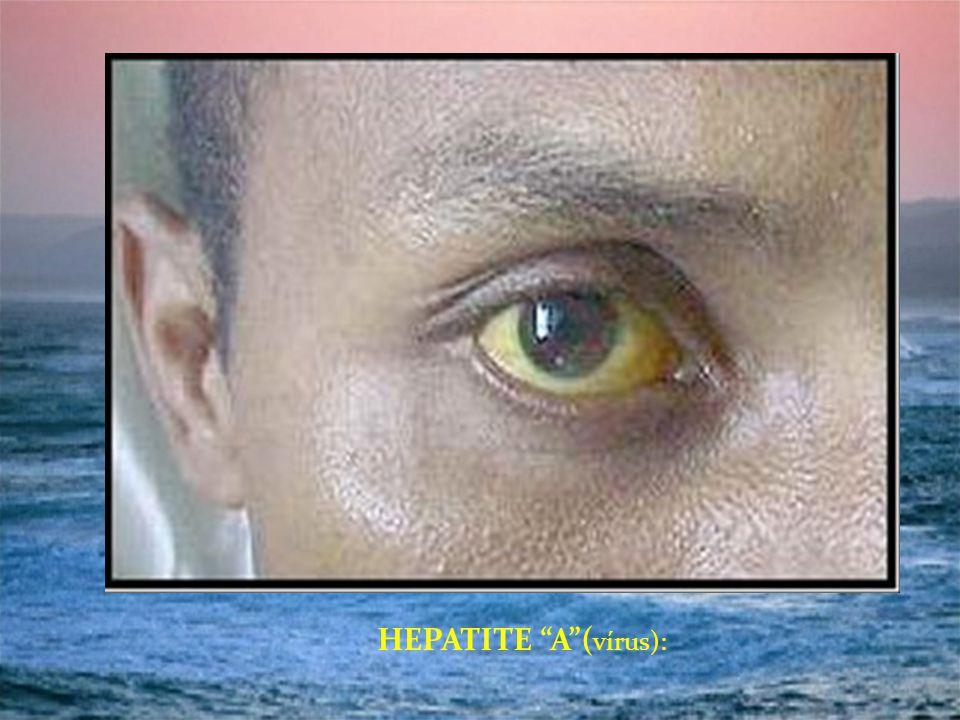 HEPATITE A( vírus):