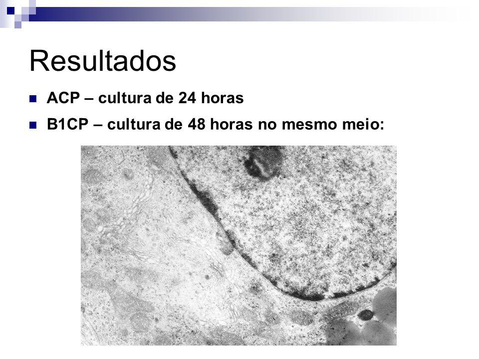 Resultados B1CP – cultura de 48 horas no mesmo meio: ACP – cultura de 24 horas