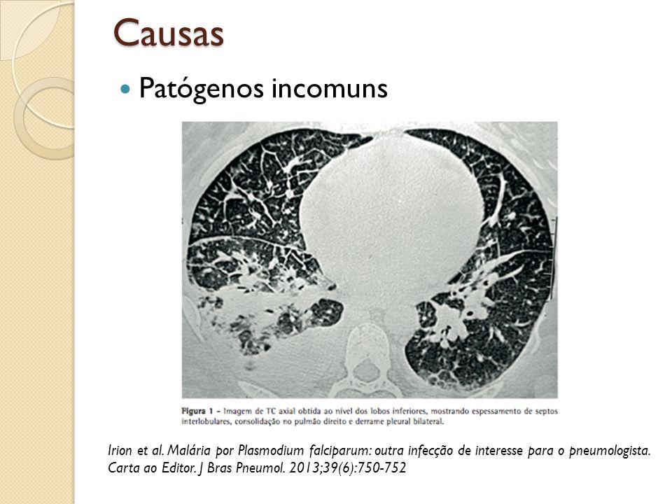 Causas Patógenos incomuns Irion et al. Malária por Plasmodium falciparum: outra infecção de interesse para o pneumologista. Carta ao Editor. J Bras Pn