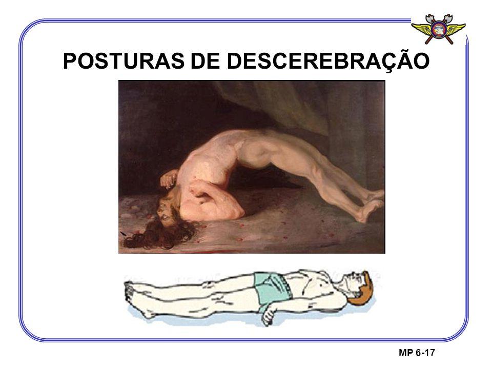 MP 6-17 POSTURAS DE DESCEREBRAÇÃO