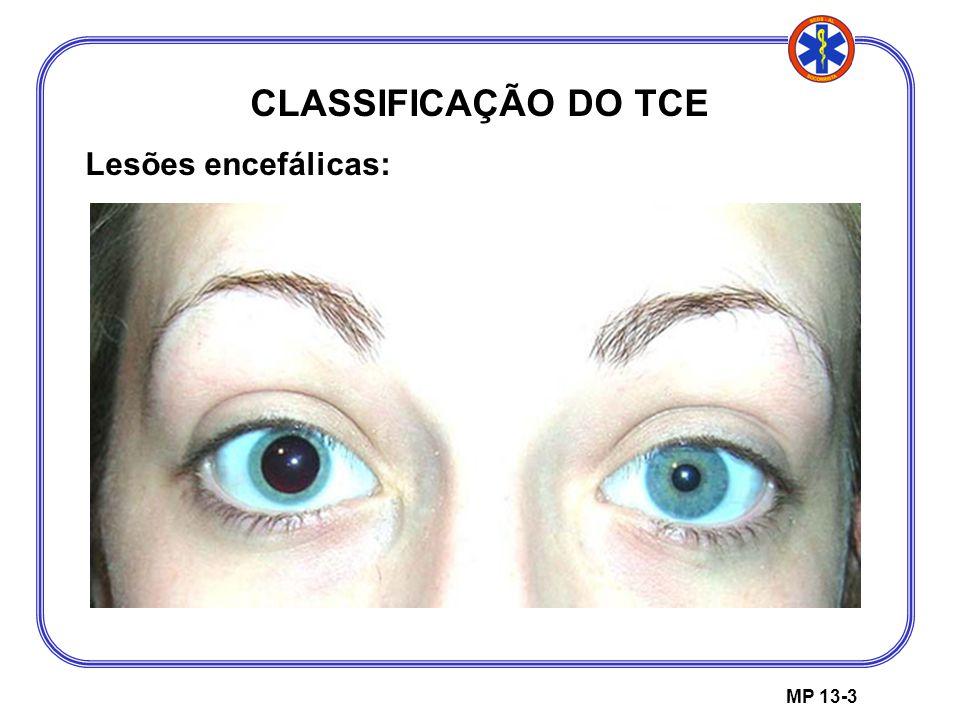 MP 13-3 CLASSIFICAÇÃO DO TCE Lesões encefálicas: